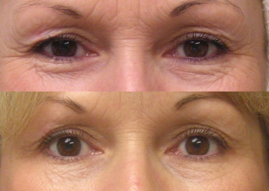 thermage-before-and-after