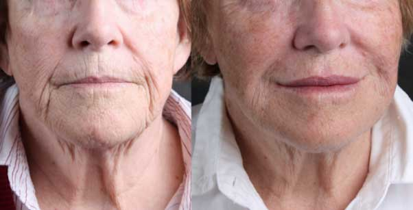 face-fillers-before-and-after