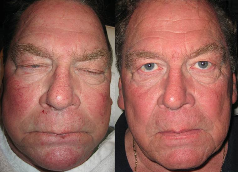 before-and-after-ipl