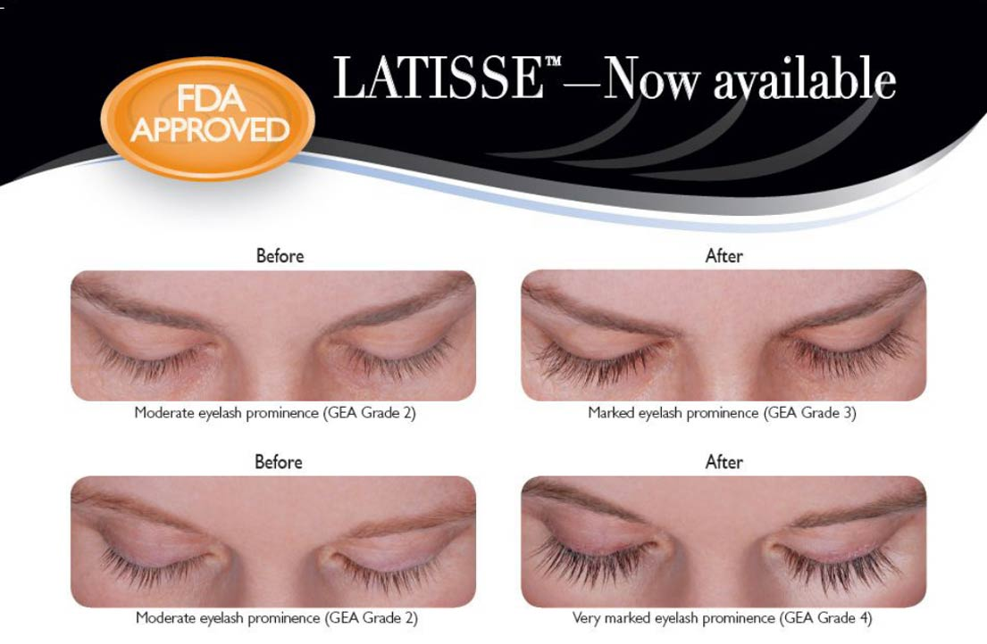 before-and-after-latisse