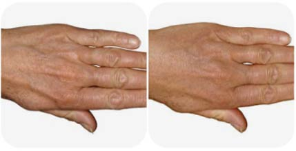 radiesse-filler-before-and-after